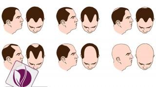 hairTransplant