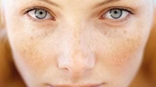 تعليمات ومضاعفات تقشير الجلد بالليزر