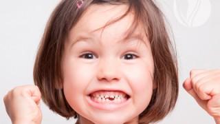 bad-teeth