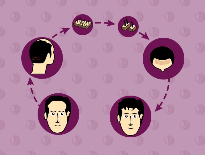 مراحل زراعة الشعر