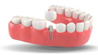 زرع الاسنان في تركيا